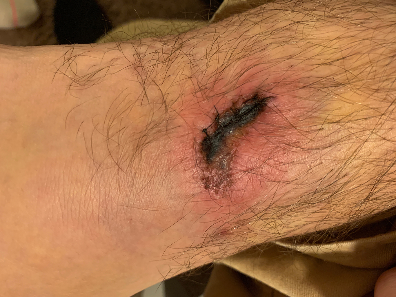 Wound Day 2, infected
